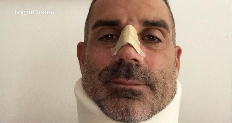 Стефано Сорренто получил серьезные травмы лица и шеи